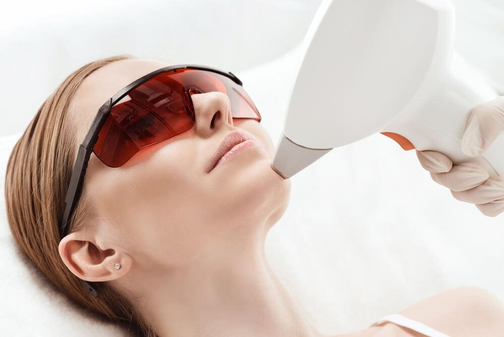 113007-laser-ablativo-como-funciona-o-tratamento